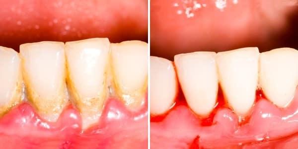 לפני ואחרי הלבנת שיניים ביתית